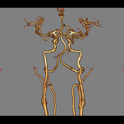 3DMR画像